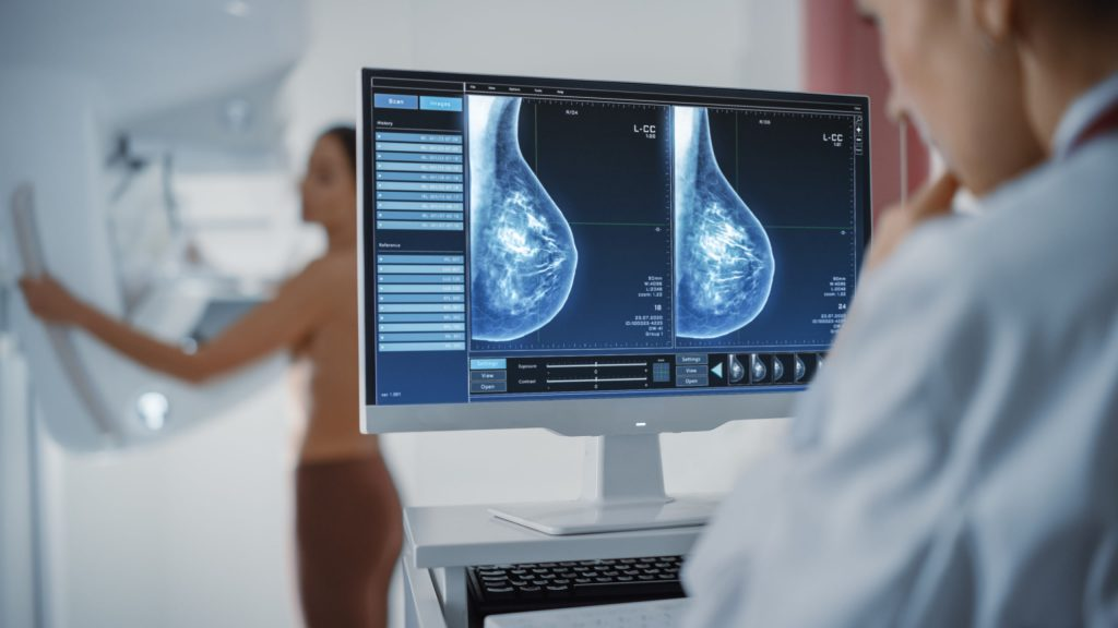 Where Will You Get a 2D Mammogram In Paterson?